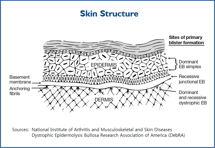 Diagram of skin layers that shows areas of blister formation for different types of epidermolysis bullosa.